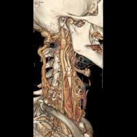 AngioScanner des vaisseaux du cou 2