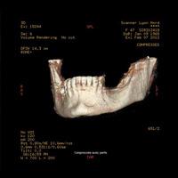 Dentascanner 3