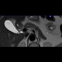 IRM hépatique et bili IRM 2