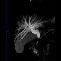 IRM hépatique et bili IRM 3