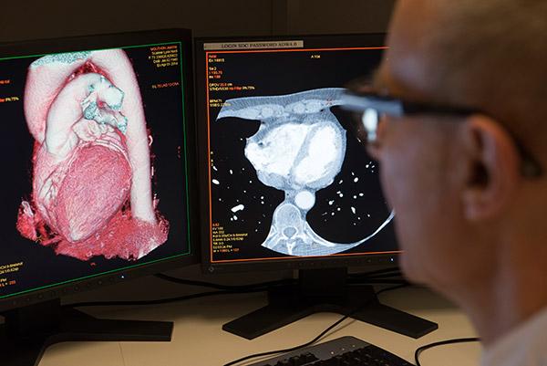 radiologie Lyon