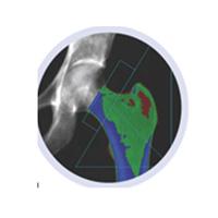 Ostéo densitométrie 2