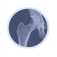 Ostéo densitométrie 3