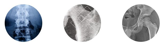 Osteodensitométrie