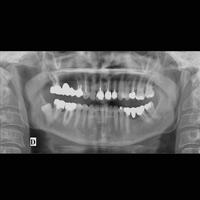 Panoramique dentaire 2
