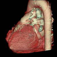 Scanner des cavités cardiaques 1