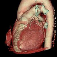 Scanner des cavités cardiaques 3
