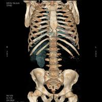 Scanner du corps entier 1