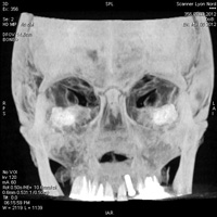 Scanner des sinus de la face 2