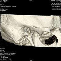 Scanner de l'oreille et du rocher 3